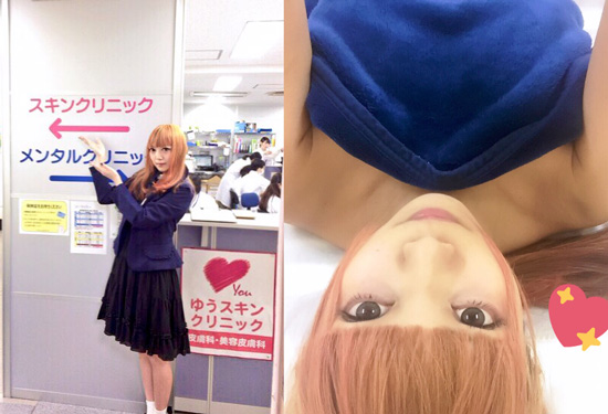 雨情華月さん(アイドル・モデル)脱毛写真1