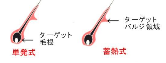 単発式のターゲットは毛根で、蓄熱式のターゲットはバルジ領域です。