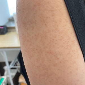サメ肌・毛孔性苔癬・毛孔性角化症 治療に効果的ダーマペン4