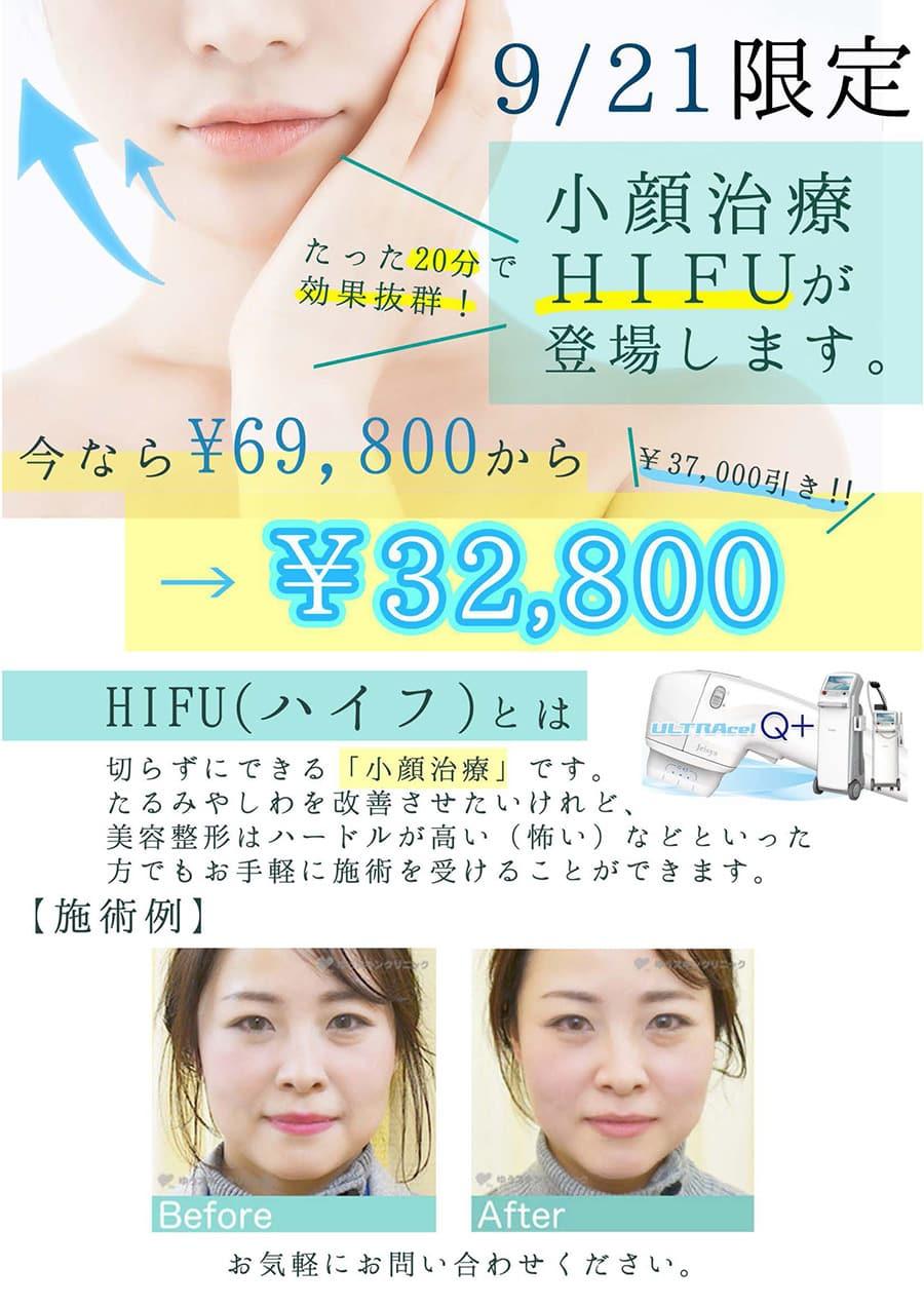 究極の小顔施術 HIFU が【上野院】に来る!
