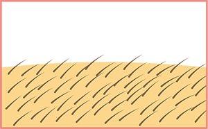 脱毛の過程|施術後の毛が伸びてきます。