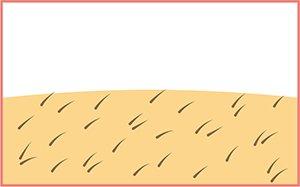 脱毛の過程|毛周期の異なる毛が生えてきます。