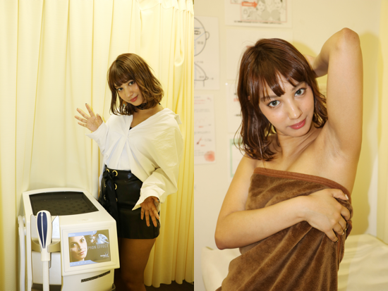 牧野紗弓さん(モデル)脱毛写真2