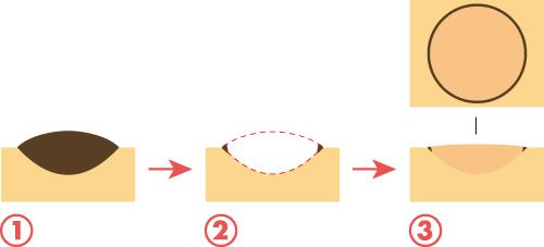 ホクロ除去イメージ1