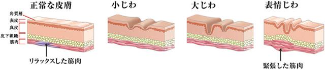 ボトックスによるシワ改善効果|しわには、大きく分けて小じわ、大じわ(構造じわ)、表情じわの3種類があります。